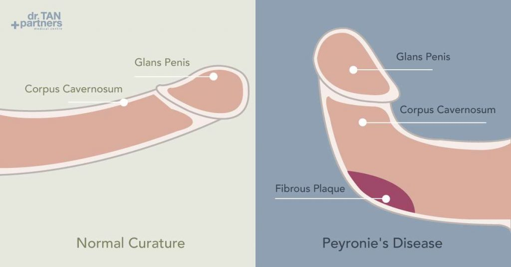 Penis odor and possible diseases